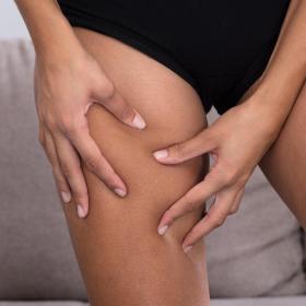 3 conseils pour éviter les cuisses qui frottent