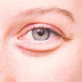 Voilà comment faire disparaître les poches sous les yeux qu'on a tous le matin quand on n'a pas assez dormi