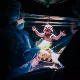 Vous n'avez jamais vu de photos d'accouchement par césarienne aussi belles que celles-ci