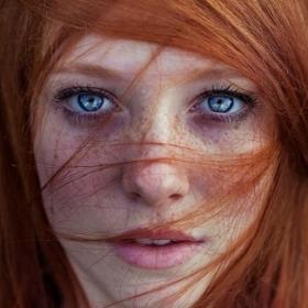13 personnes magnifiques et remarquables grâce à la beauté unique de leurs taches de rousseur