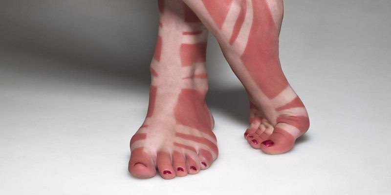 Comment viter les traces de bronzage so busy girls - Comment transformer coup de soleil en bronzage ...