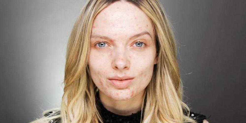 cicatrices-d-acne-comment-les-faire-disparaitre