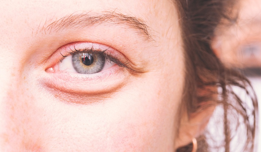 poche d eau sous les yeux par Mylène Depuis quelques temps, vous avez des poches sous les yeux et  vous aimeriez les voir disparaître ? Pas de panique ! Avec des soins et des  massages ...
